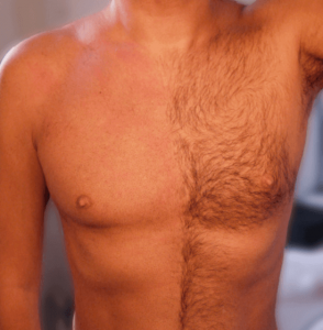 Få ordning på brösthåret